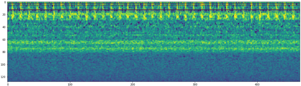 anomaly_spectrogram.png